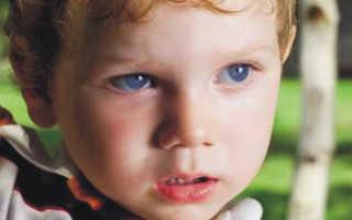 Почему ребенок в год не разговаривает