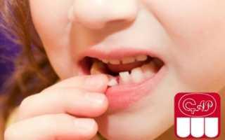Какие зубы у детей молочные