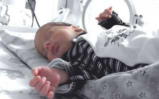 Малыши с гастрошизисом во сколько рождаются